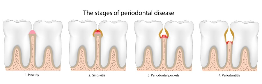 Graphic showing the stages of gum disease