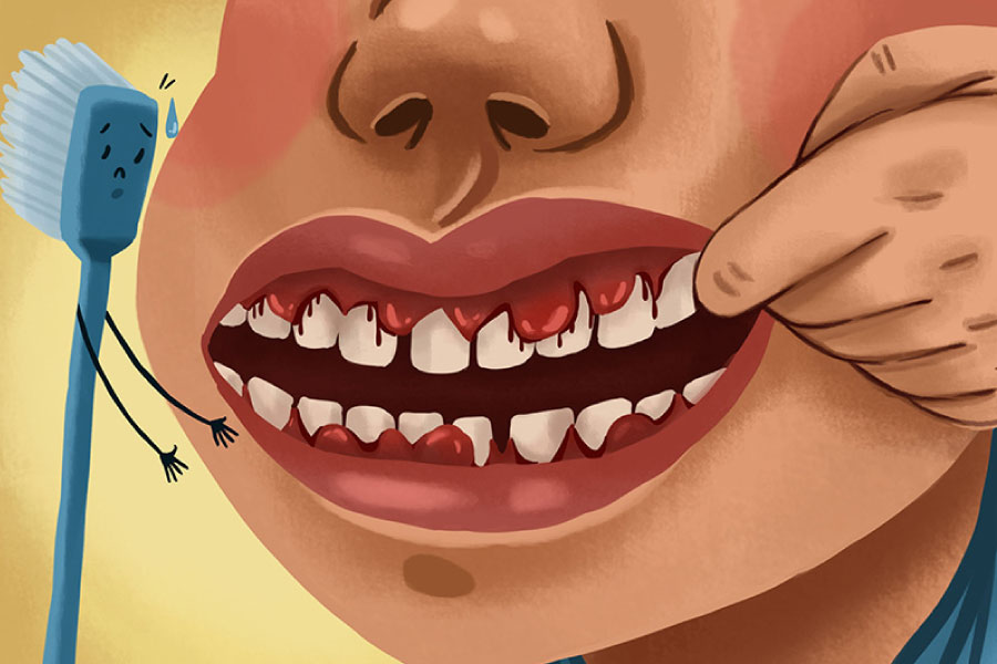 Cartoon of an individual with bleeding gums due to gum disease.